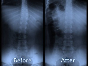 Before and after picture of network chiropractic care